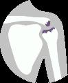 Léčba bolesti ramene - osteoartróza