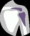 Léčba bolesti ramene - vykloubení, zlomeniny